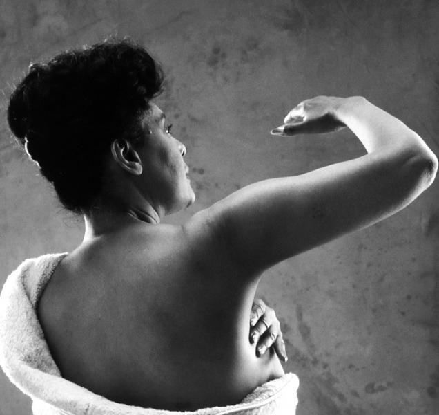 Quem é você após o câncer de mama?
